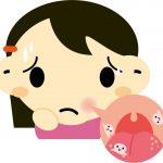 舌先に出来た痛い口内炎を早く治す方法を試してみました。
