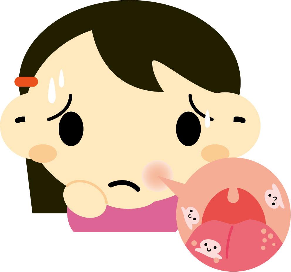 口内炎 早く 治る 方法